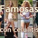 Famosas con celulitis