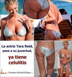 famosa Tara Reid con celulitis en las piernas