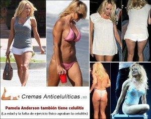 pamela anderson celulitis en las piernas y cuerpo