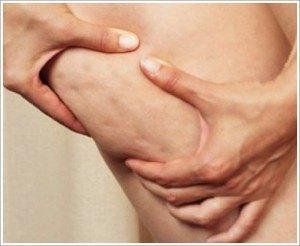 piernas-con-celulitis-cremas-anticeluliticas